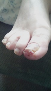 This is a condition that a Foot Doctor Specialist commonly treats and that is an ingrown toe nail.