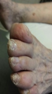 This is a patient who requires diabetic foot care.