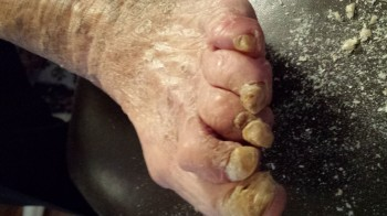 Neglected Fungal Foot Toe Nails.