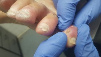 Infection of pinky toe is due by diabetic neuropathy by wearing improper slippers.