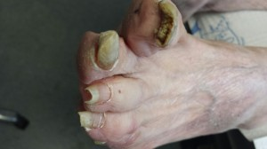 This is a picture of two toes that are infected by fungi that was untreated.