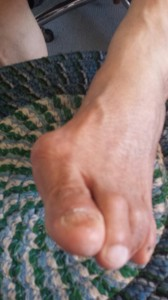 This is a front view of a bunion on the patient's left foot.