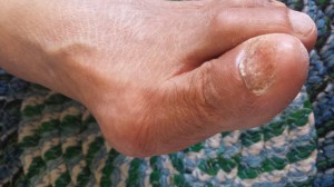 This is a side view of a bunion on the patient's left foot.