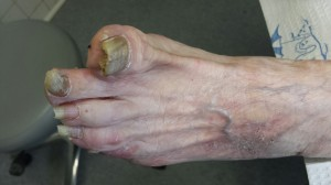 This is the side view of the foot of a patient's toes that are infected by fungi.