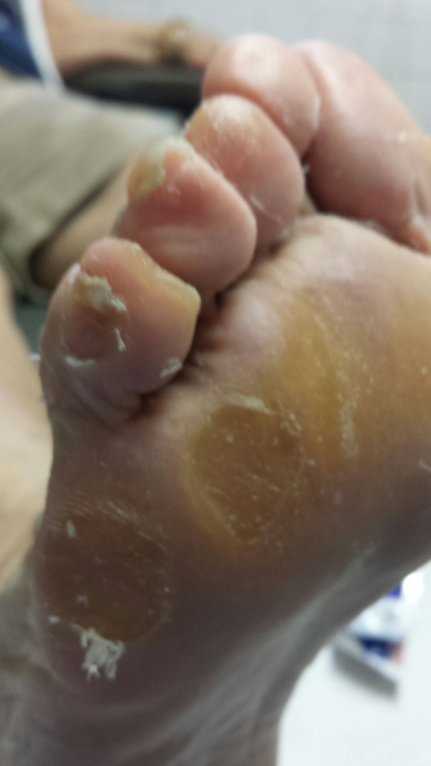 This condition is caused by allowing diabetes to take its course without treatment.