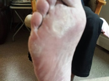 Painful calluses from hammer toe deformities.